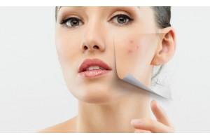 Стремимся к совершенной коже: о куперозе и способах борьбы с ним